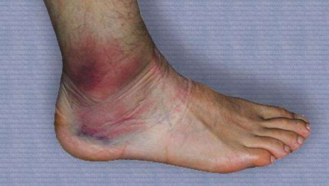 deteriorarea parțială a tratamentului ligamentelor de gleznă