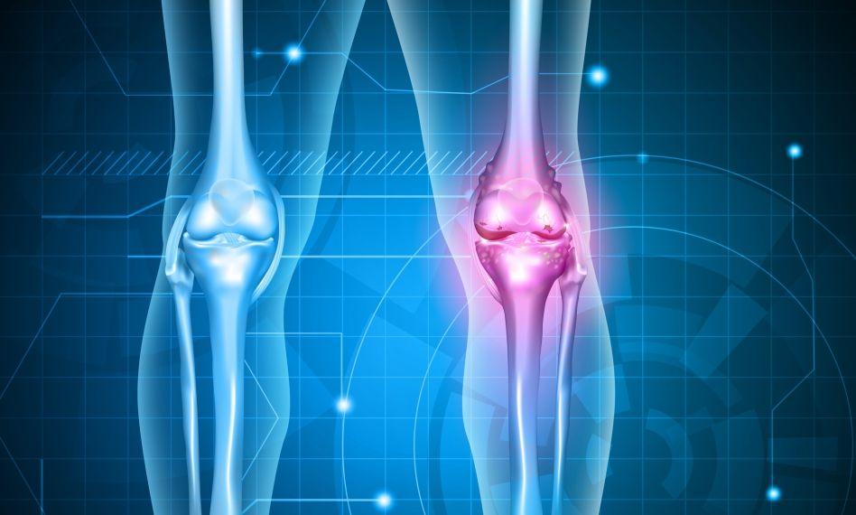 lg cu artroza genunchiului)