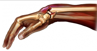 fracturi ale degetelor