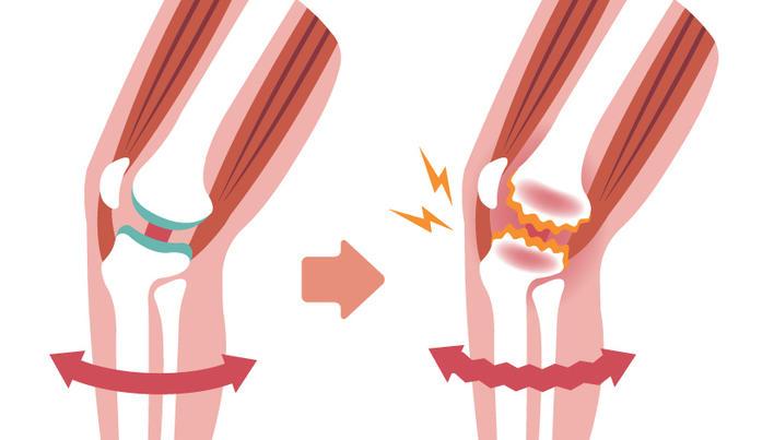 tratamentul gon artrozei