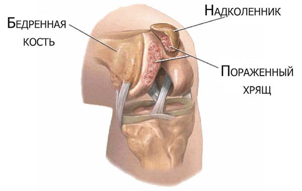 blocarea articulației genunchiului cu consecințe de artroză