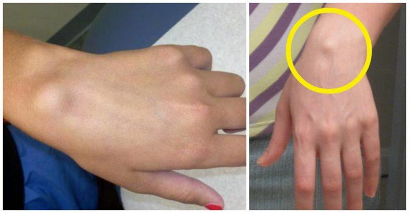 medicamentele ameliorează inflamațiile articulare articulația degetului mijlociu doare dimineața