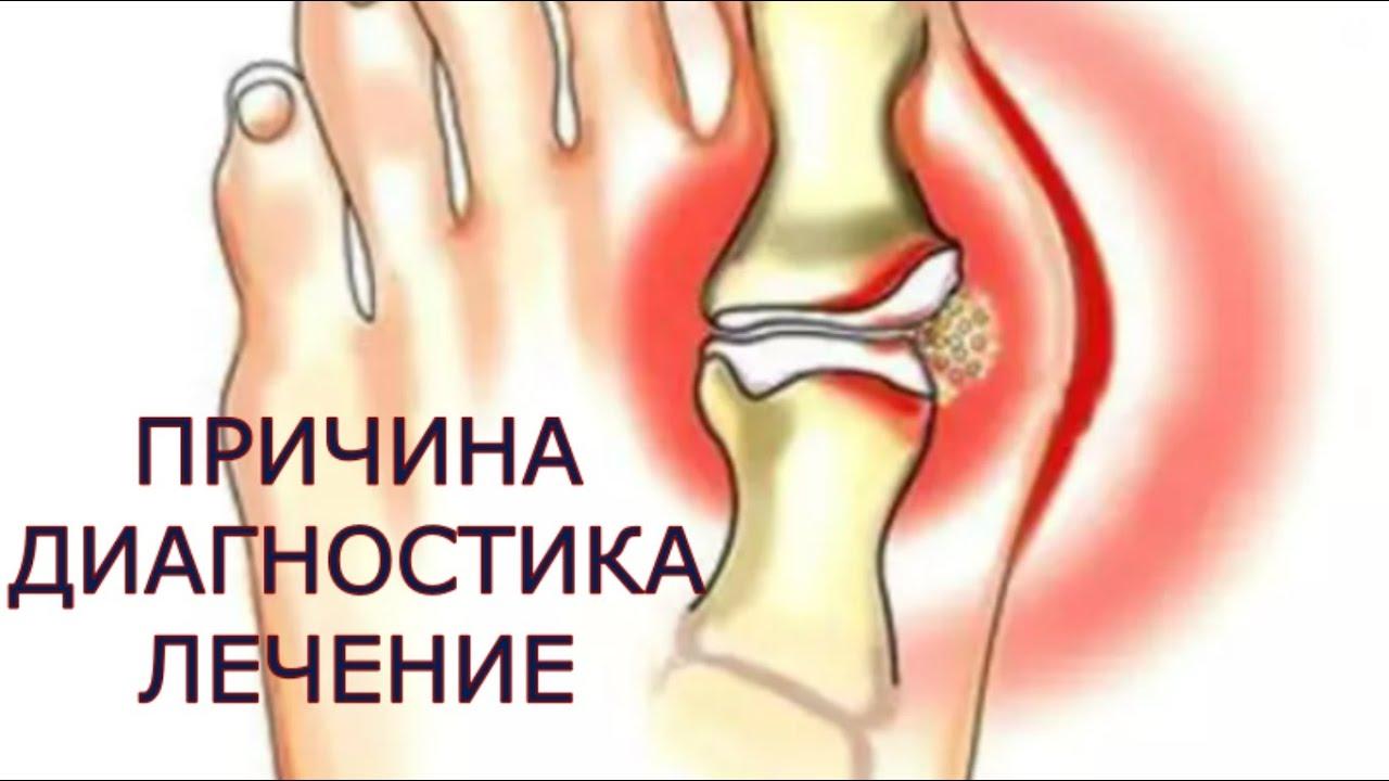 inflamație articulară cu artroză