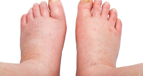 tratament pentru picioare umflate