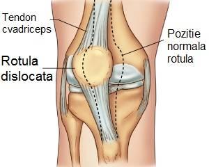 durere după luxația articulară