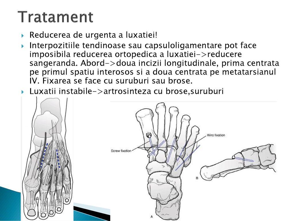 Tratamentul articulației lisfranc)
