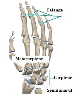 leziunea articulației carpiene