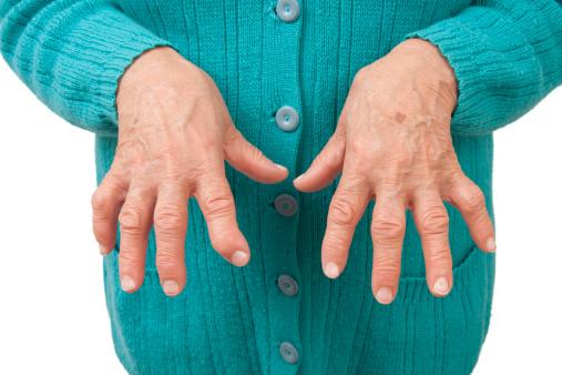 Care sunt etapele de evolutie ale sinovitei in poliartrita reumatoida?