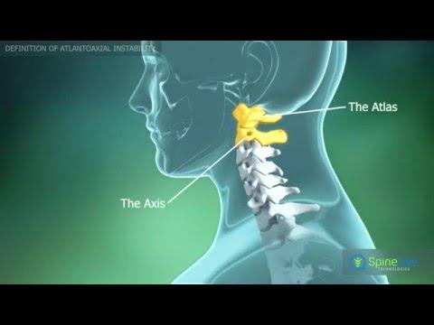 artroza articulației atlanto-axiale cum se tratează