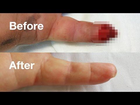 bump pe articulația degetului mare