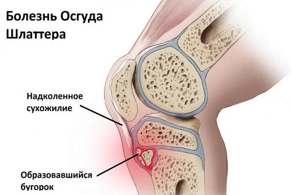 boli ale genunchiului la vârstnici