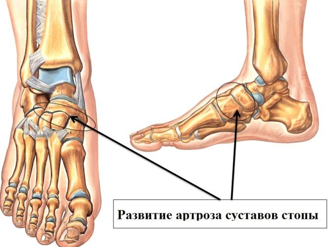 boli ale articulațiilor picioarelor ce geluri sunt injectate în articulație