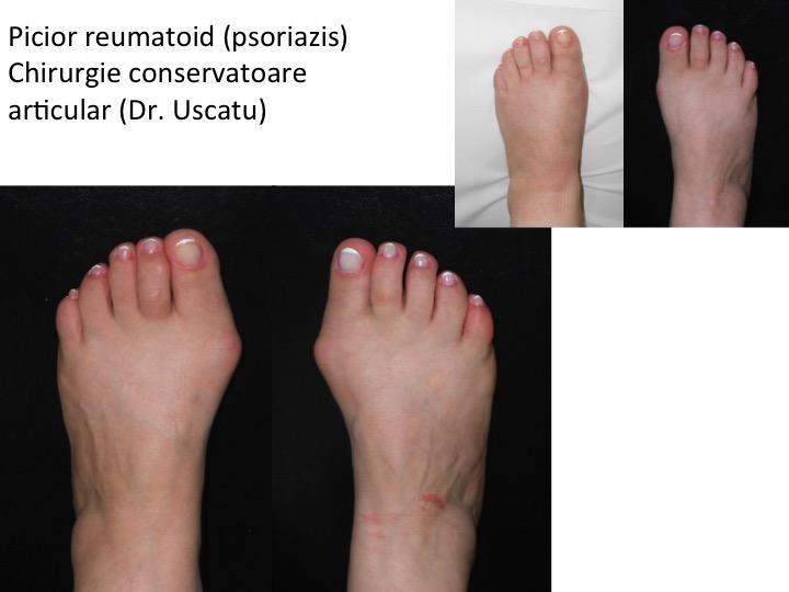 pinten între tratamentul degetelor de la picioare