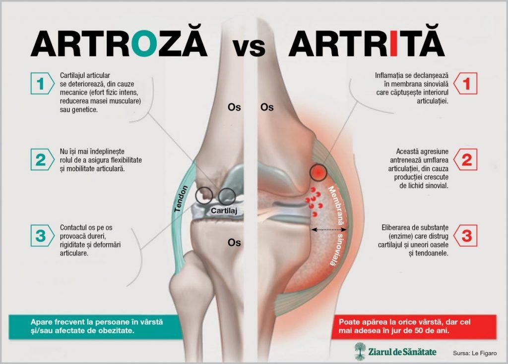 Care este diferenta dintre artrita si artroza? - studioharry.ro