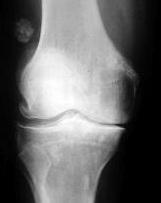 gonartroza 2 3 grade a tratamentului articulației genunchiului)