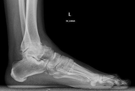 tratamentul osteoartrozei articulației gleznei)