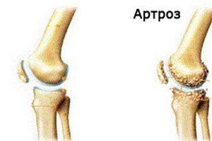 toate semnele de artroză a genunchiului preparate pentru tratarea condroprotectoarelor de artroză