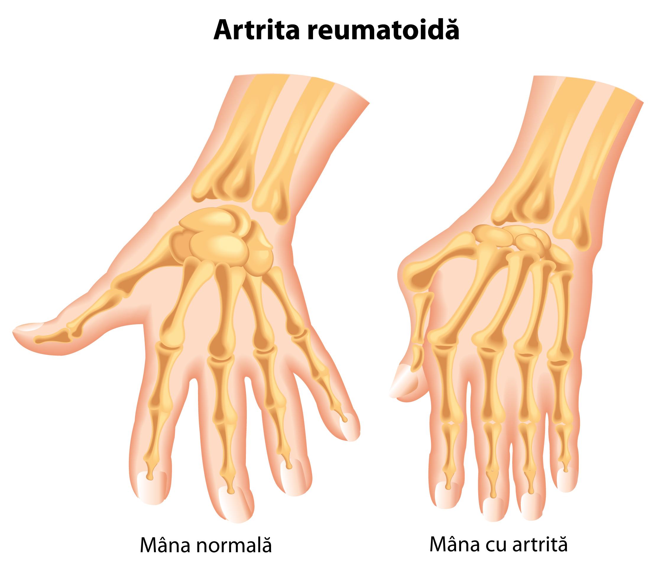 în artrita acută a degetelor