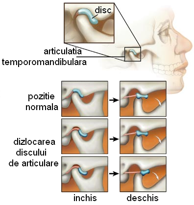 durere din articulația temporală inferioară)