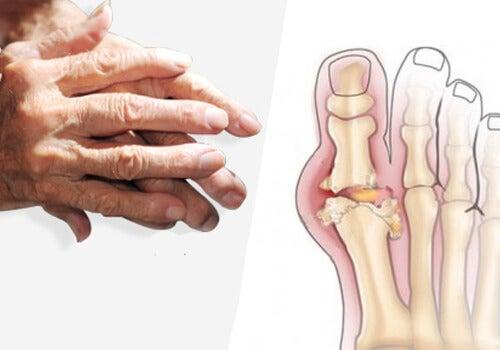 tratamentul articulațiilor artritei