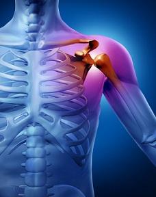 crăparea umărului în articulație nu durere
