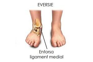 inflamația tratamentului ligamentelor gleznei
