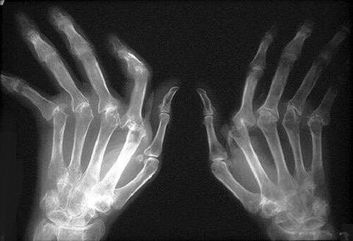 artrita reumatoidă a tratamentului mâinilor)