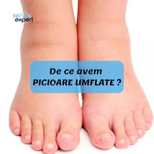 umflarea articulației pe degetul de la picior
