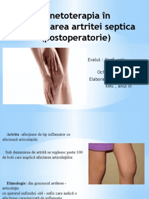 Încărcarea artritei. Tratamentul antiinflamator in poliartrita reumatoida
