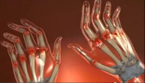 articulațiile suferă de boală)