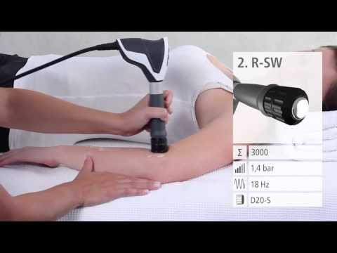 artroza geofocamului genunchiului