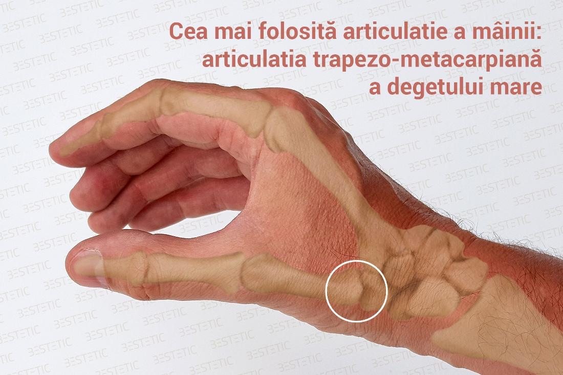 artroza degetelor de la picioare și ale mâinilor
