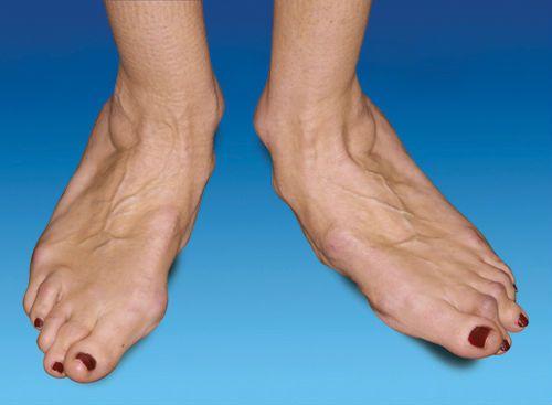 pastile articulare ale piciorului