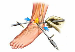 Gimnastica in tratamentul artrozei gleznei.