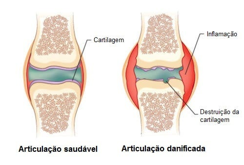 remediu articular artritic