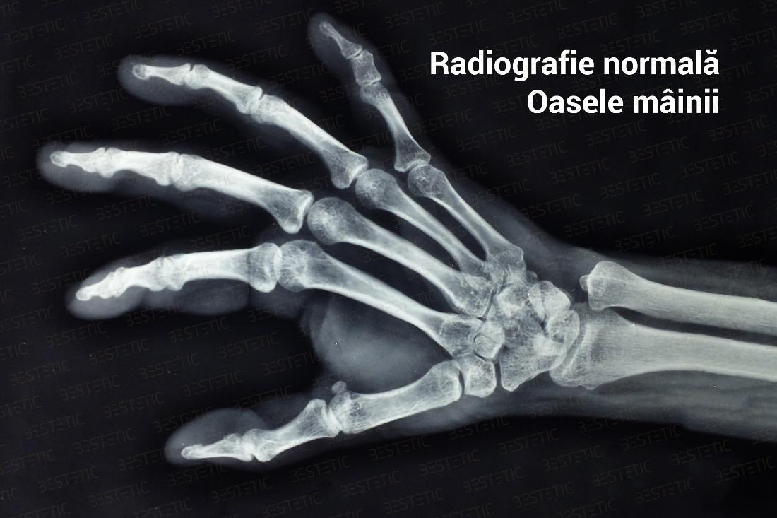 artrita artroza pe degete