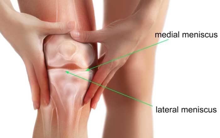 menisc al tratamentului conservator al genunchiului un braț dureros în articulația cotului