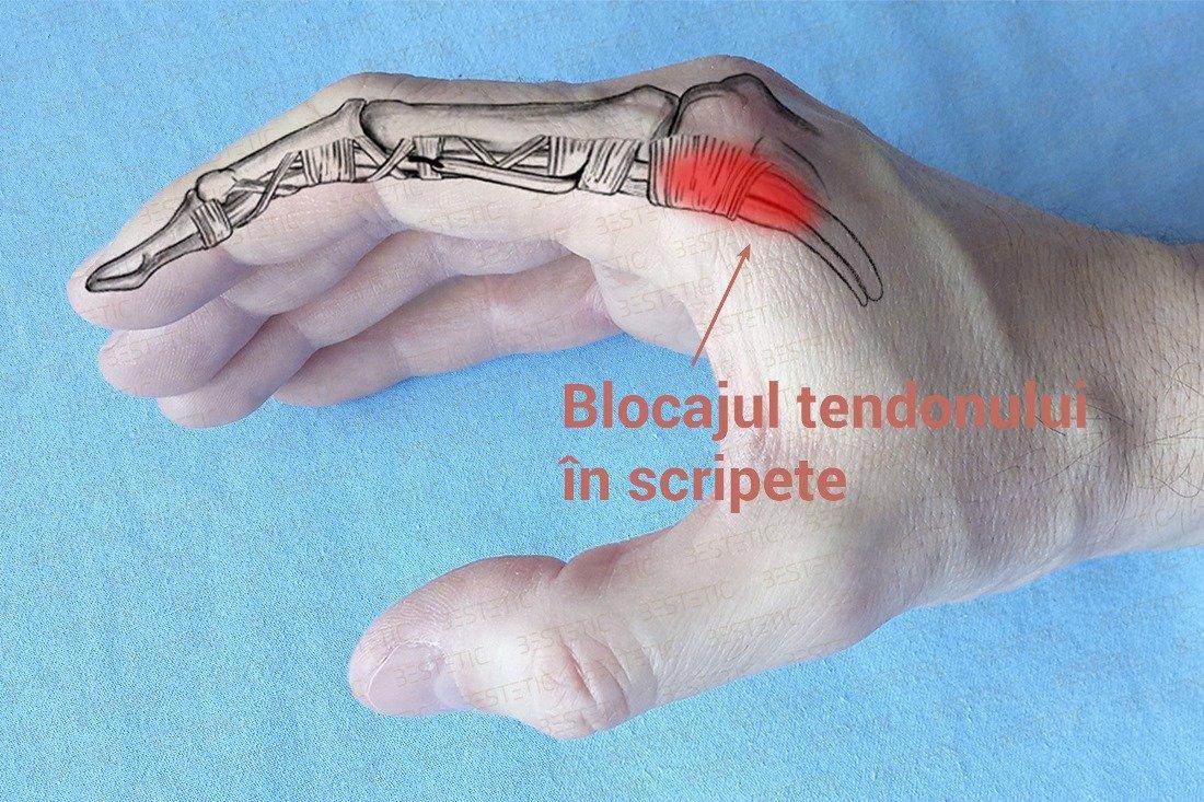 durere sacadată într-o articulație a degetului