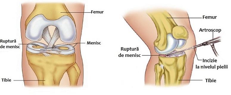 dureri la nivelul genunchiului peste genunchi și tratamentul mamei pentru artroză