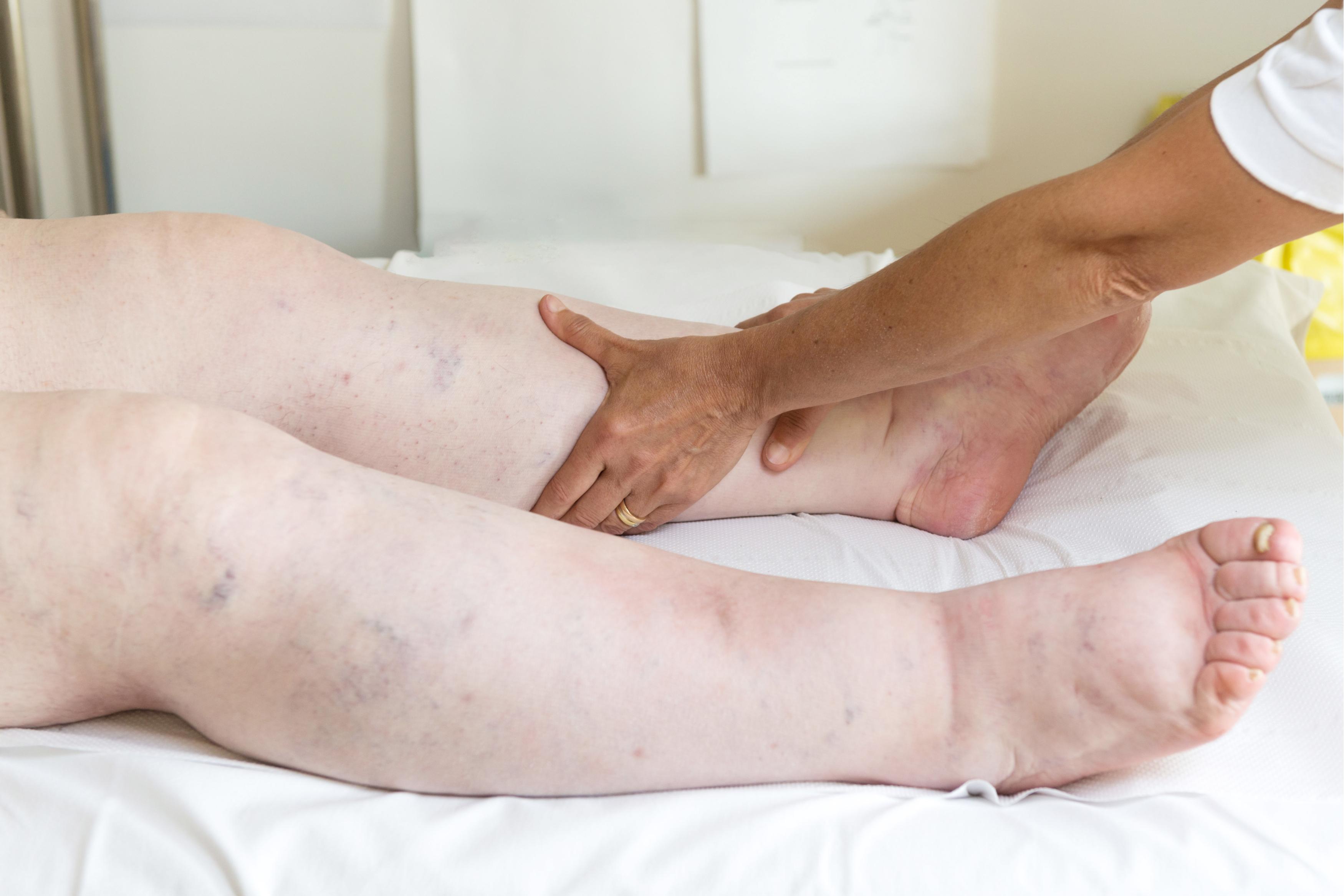 articulațiile picioarelor umflate ce să facă)