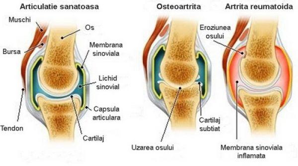 răceli artrita cum să tratezi