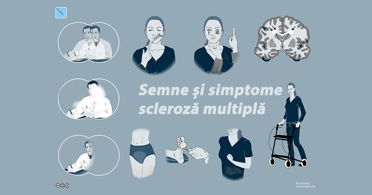 scleroză multiplă și dureri articulare