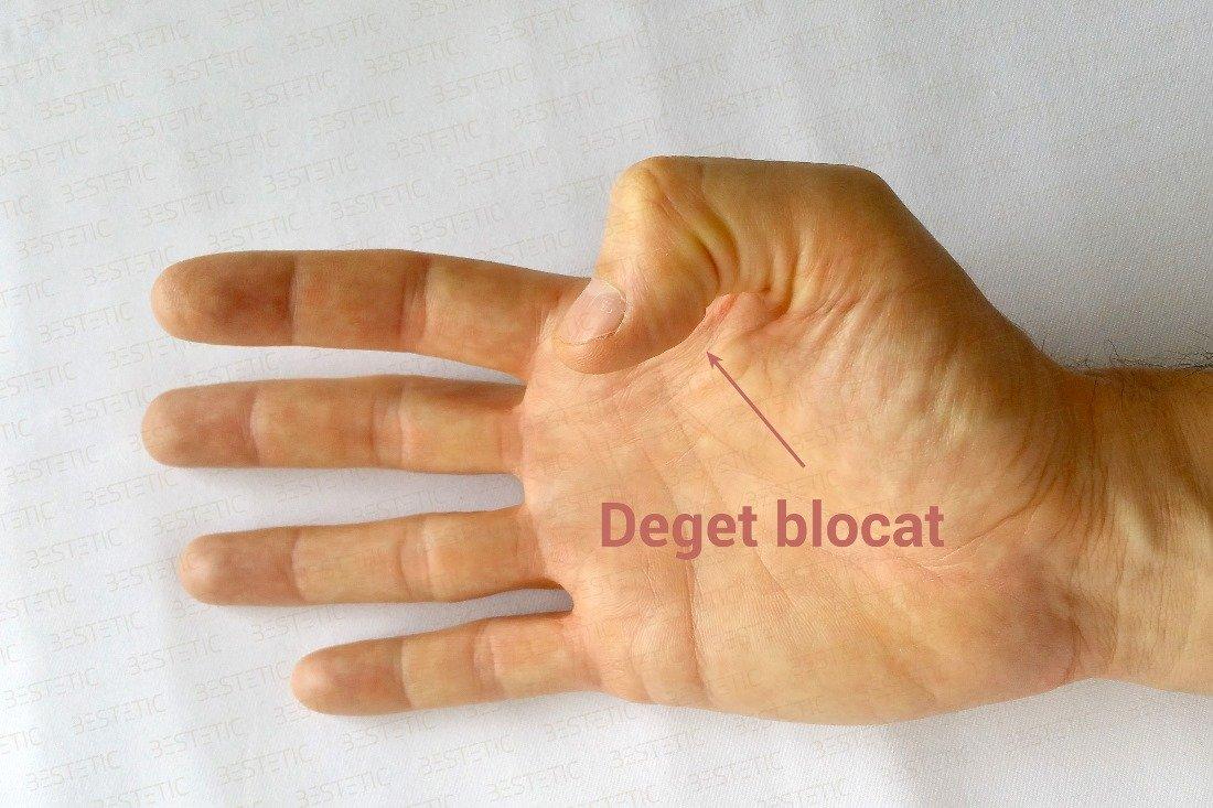 articulația degetului arătător doare