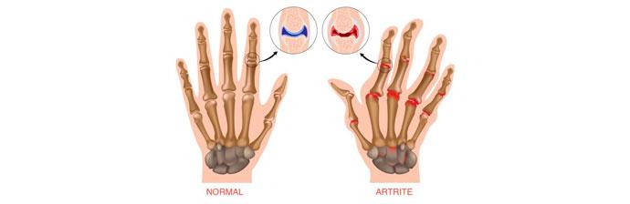 Durerea Articulatiilor - Tipuri, Cauze si Remedii - Tratament articular mucosat
