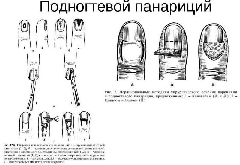 umflarea durerii genului febril)