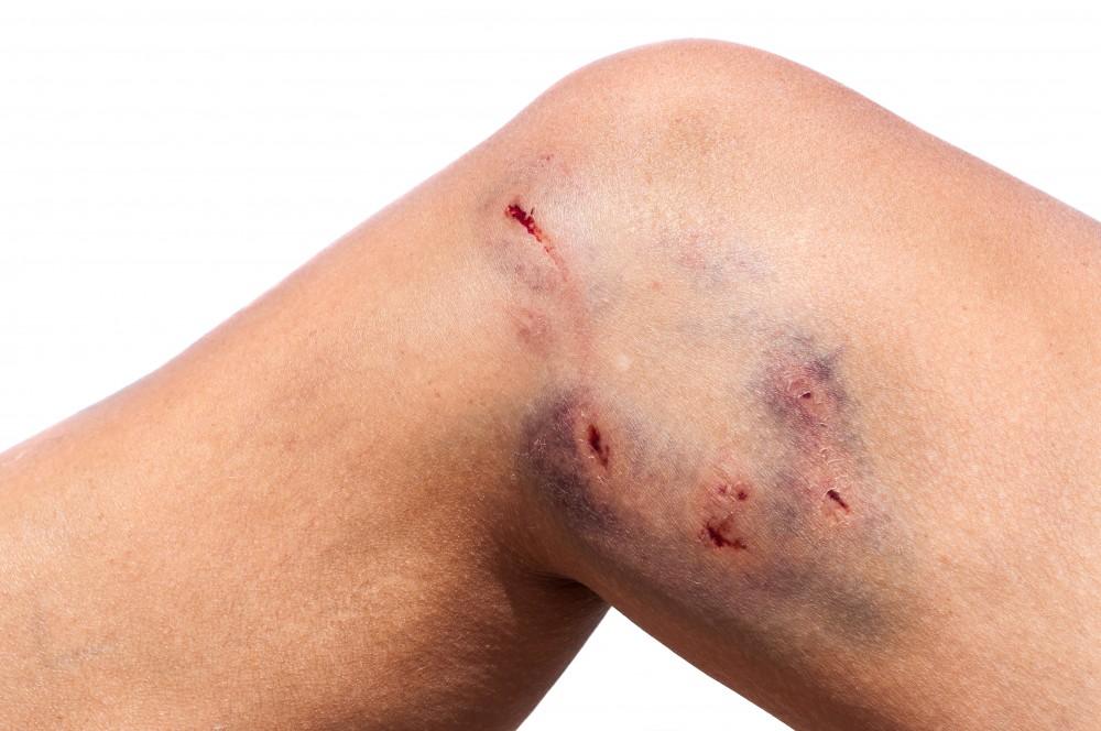 dureri articulare cu rabie