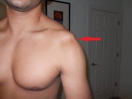 refacerea articulației umărului după luxație