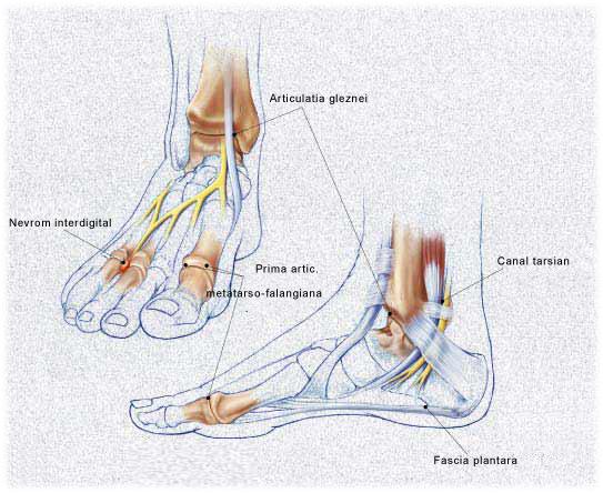 Simptomele si tratamentul artrozei gleznei si a labei piciorului