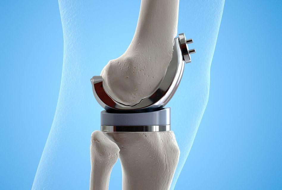 refacerea articulațiilor genunchiului