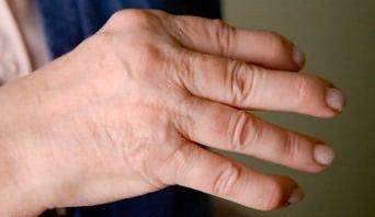articulații ale arătătorului degetelor)